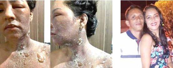 Vereadora Dudu Coelho ficou com o pescoço queimado Foto: divulgação