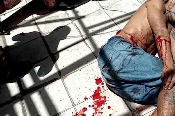PM baleado no Bairro São Francisco em São Luís